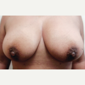 45-54 year old woman treated with Breast Augmentation after 3460127