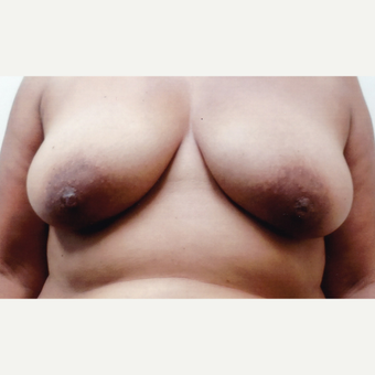 45-54 year old woman treated with Breast Augmentation before 3460127