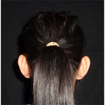 25-34 year old woman treated with Ear Surgery before 3838744