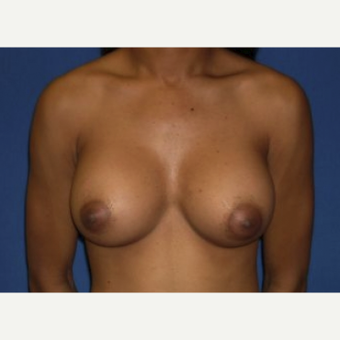 25-34 year old woman treated with Breast Augmentation after 3220019