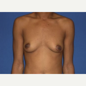 25-34 year old woman treated with Breast Augmentation before 3220019