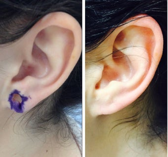 25-34 year old woman treated with Ear Lobe Surgery before 2697653