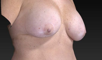 45-54 year old woman treated with Breast Lift and Implant Removal 3563896