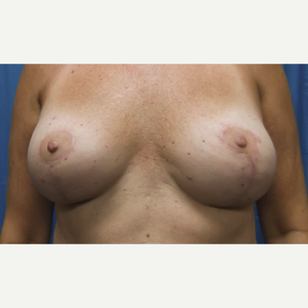 45-54 year old woman treated with Breast Lift and Implant Removal after 3563896