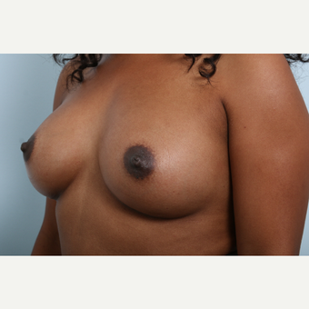 Breast Augmentation after 3340348