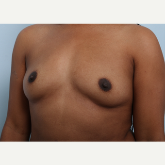 Breast Augmentation before 3340348
