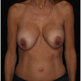 48 year old woman treated with Breast Implant Revision before 3000949