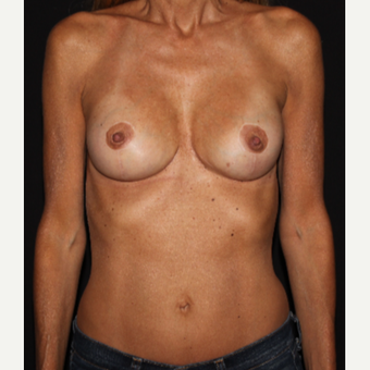 48 year old woman treated with Breast Implant Revision after 3000949