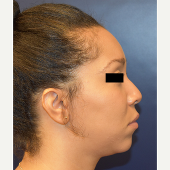 25-34 year old woman treated with Nose Surgery before 3496706