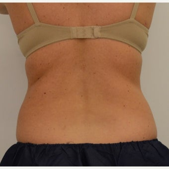 35-44 year old woman treated with CoolSculpting before 1756284