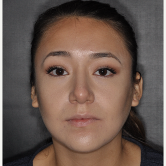 18-24 year old woman treated with Septoplasty 1 year post-op after 3708695