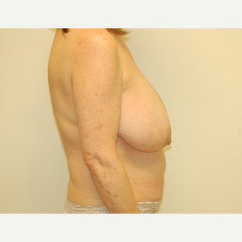55-64 year old woman treated with Breast Lift before 3032514