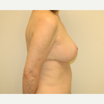 55-64 year old woman treated with Breast Lift after 3032514