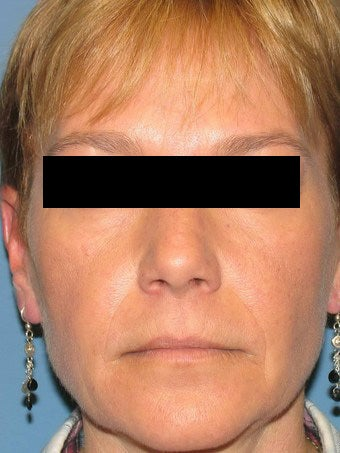 Co2 laser resurfacing after 946098