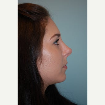 18-24 year old woman treated with Septoplasty after 1566526