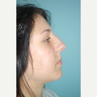 18-24 year old woman treated with Septoplasty before 1566526