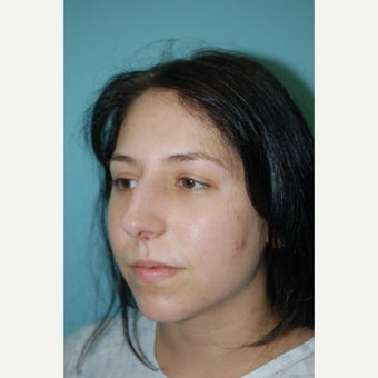 18-24 year old woman treated with Septoplasty 1566526