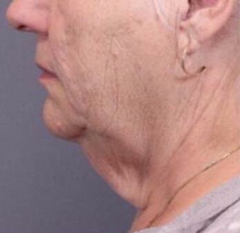 65-74 year old woman treated with Facelift before 3758452