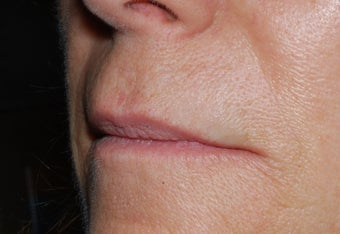 Juvederm upper lip lines and smile folds
