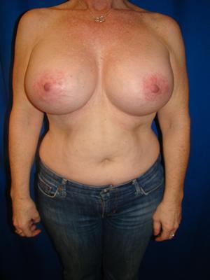 Benelli Lift, Revision Breast Surgery, Silicone gel Implants after 1367871