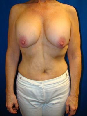Benelli Lift, Revision Breast Surgery, Silicone gel Implants before 1367871