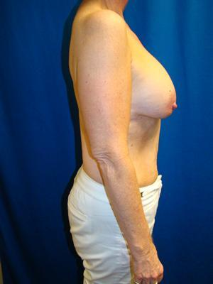 Benelli Lift, Revision Breast Surgery, Silicone gel Implants 1367871