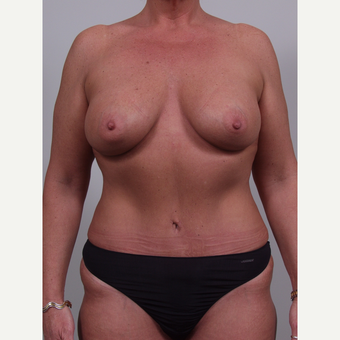 35-44 year old woman treated with Mommy Makeover after 3769396