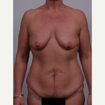35-44 year old woman treated with Mommy Makeover before 3769396