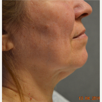 55-64 year old woman treated with Non Excisiona Neck Lift before 3486642