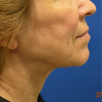 55-64 year old woman treated with Non Excisiona Neck Lift after 3486642