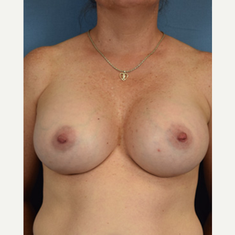 45-54 year old woman treated with Breast Augmentation after 3529659
