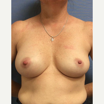 45-54 year old woman treated with Breast Augmentation before 3529659