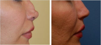 Revision Rhinoplasty before 334250