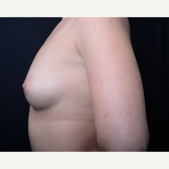 25-34 year old woman treated with Breast Augmentation before 3384207