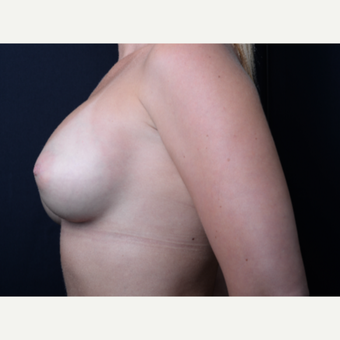 25-34 year old woman treated with Breast Augmentation after 3384207