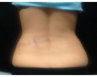 25 year old female Coolsculpting back/flanks before 1231521
