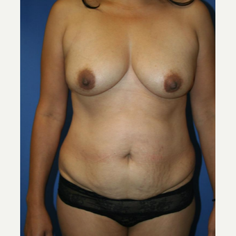 35-44 year old woman treated with Mommy Makeover before 2993982
