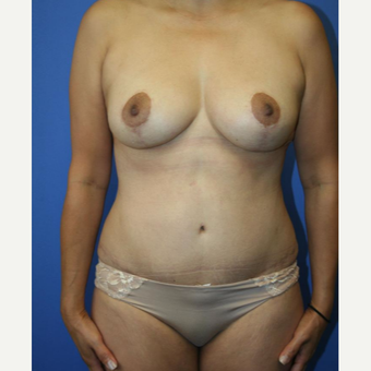 35-44 year old woman treated with Mommy Makeover after 2993982