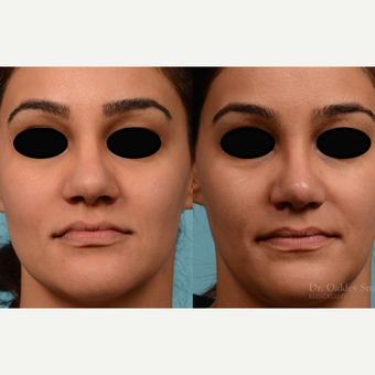 25-34 year old woman treated with Rhinoplasty before 3821213