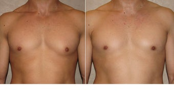 Gynecomastia before 721919
