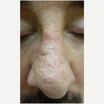 55-64 year old man treated with Dermabrasion before 3139453
