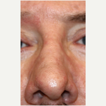 55-64 year old man treated with Dermabrasion after 3139453