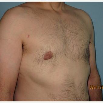 35-44 year old man treated with Male Breast Reduction after 3725454
