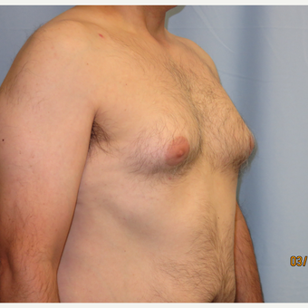 35-44 year old man treated with Male Breast Reduction before 3725454