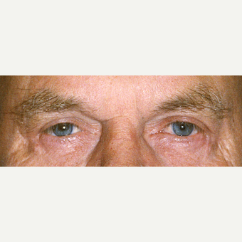 75 and up year old man treated with Eyelid Surgery after 3441216
