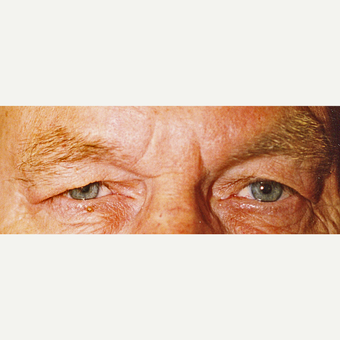 75 and up year old man treated with Eyelid Surgery before 3441216