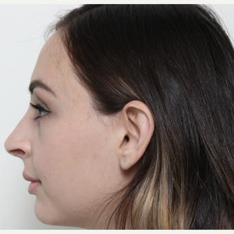 18-24 year old man treated with Rhinoplasty after 3340233