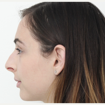 18-24 year old man treated with Rhinoplasty before 3340233