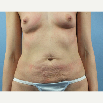 35-44 year old woman treated with Mommy Makeover before 3175502