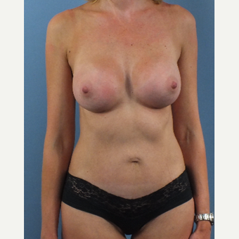 35-44 year old woman treated with Mommy Makeover after 3175502